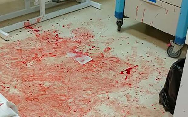 Agrede y salpica con su sangre a varios sanitarios en Águilas